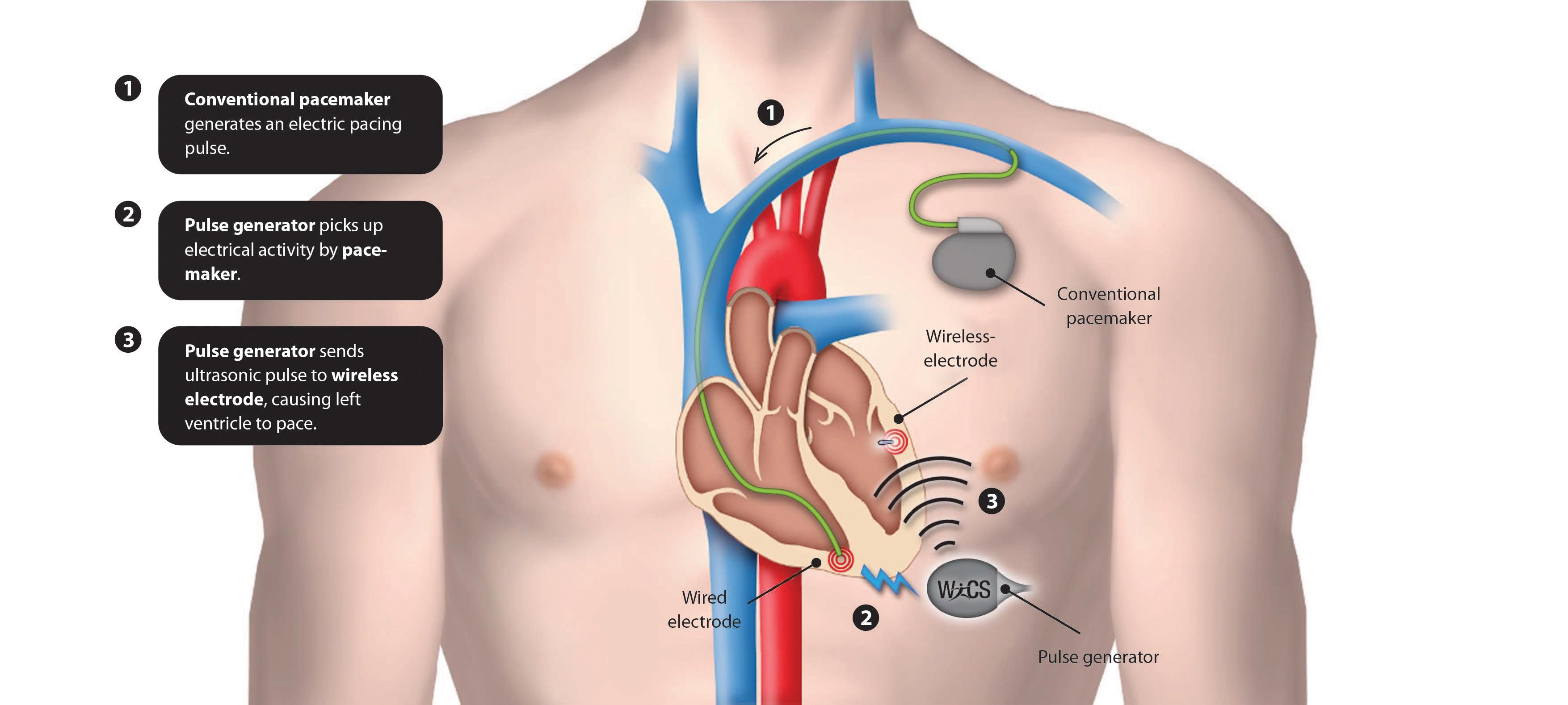 Bezprzewodowy rozrusznik serca