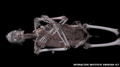 _73698299_skeleton