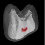 cavity-3d-healing